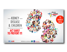 WKD 2016 Campaign Image