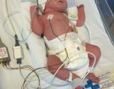 My son's kidney story [2/3]